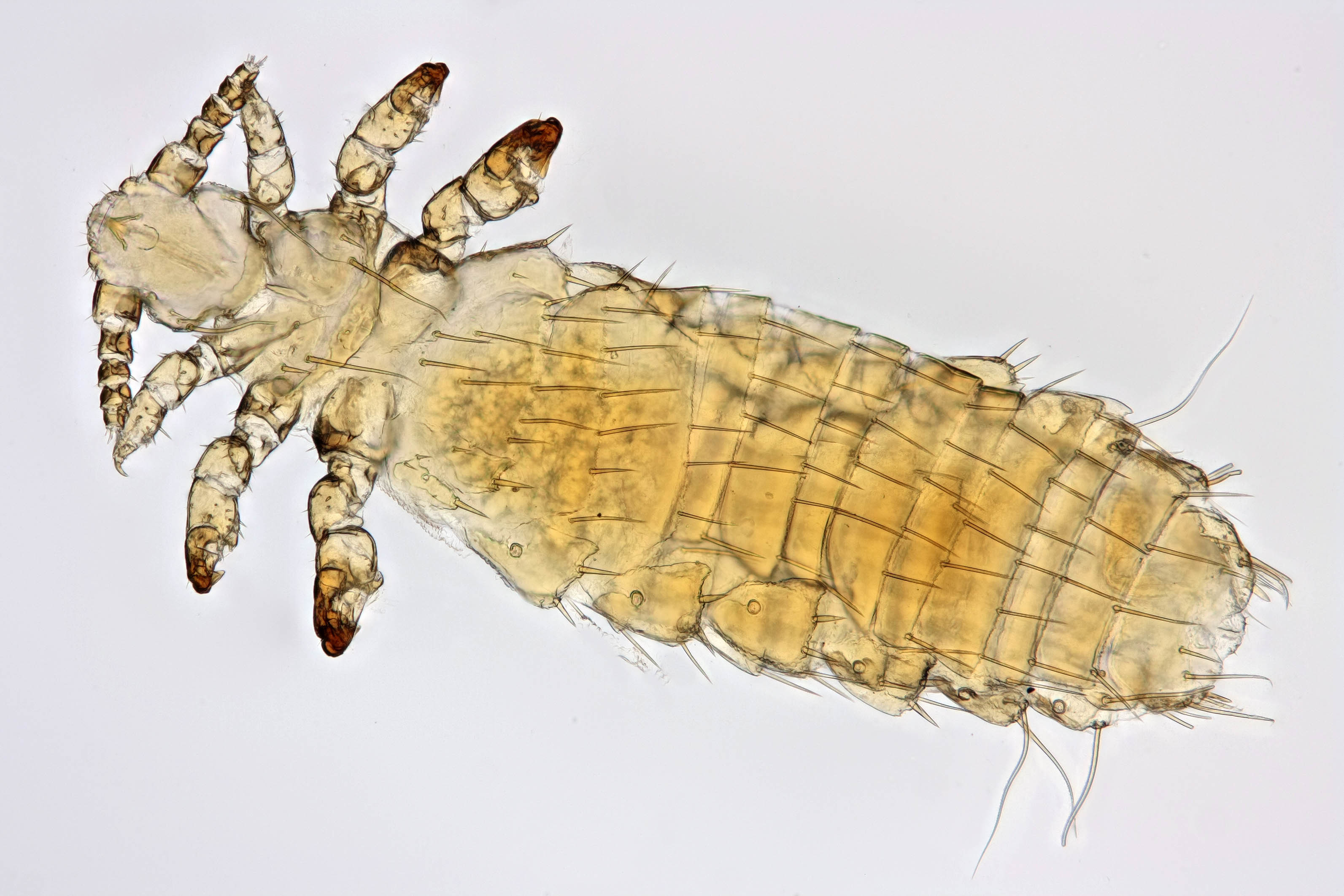 Image of Sucking louse