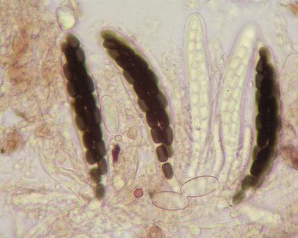 Image of <i>Sporormiella minima</i> (Auersw.) S. I. Ahmed & Cain 1970