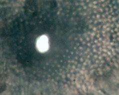 Image of Aposphaeria