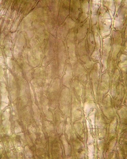 Image of <i>Seligeria calycina</i>
