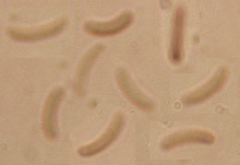 Image of <i>Eutypa maura</i> (Fr.) Sacc. 1882
