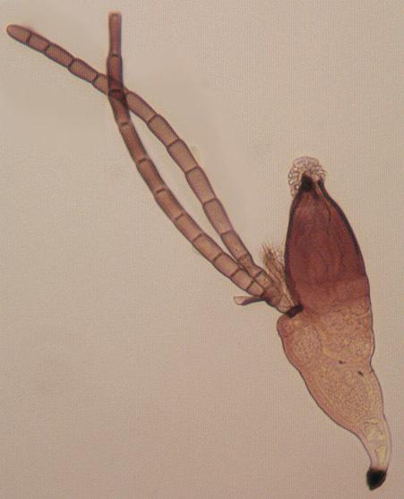 Image of <i>Laboulbenia cristata</i> Thaxt. 1892