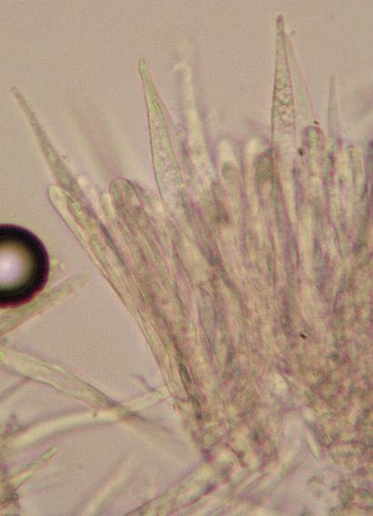 Image of <i>Albotricha acutipila</i> (P. Karst.) Raitv. 1970