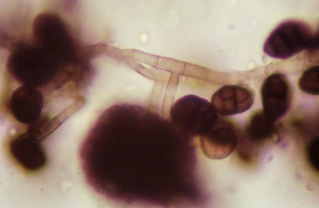 Image of Ulocladium