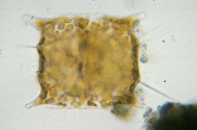 Image of <i>Biddulphia baileyii</i> W. Smith