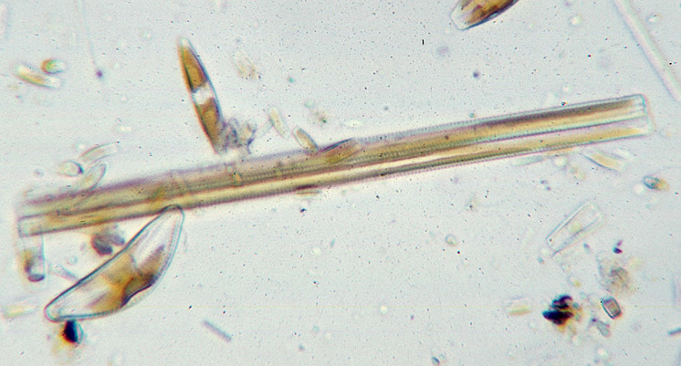 Image of Synedra