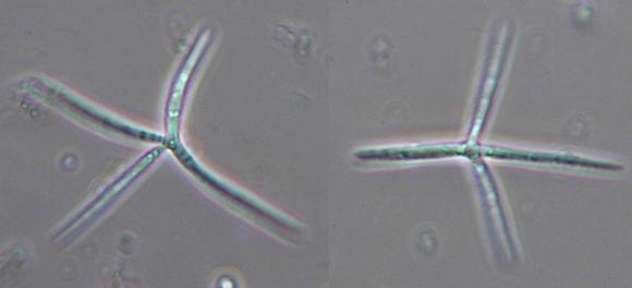 Image of <i>Alatospora acuminata</i> Ingold 1942