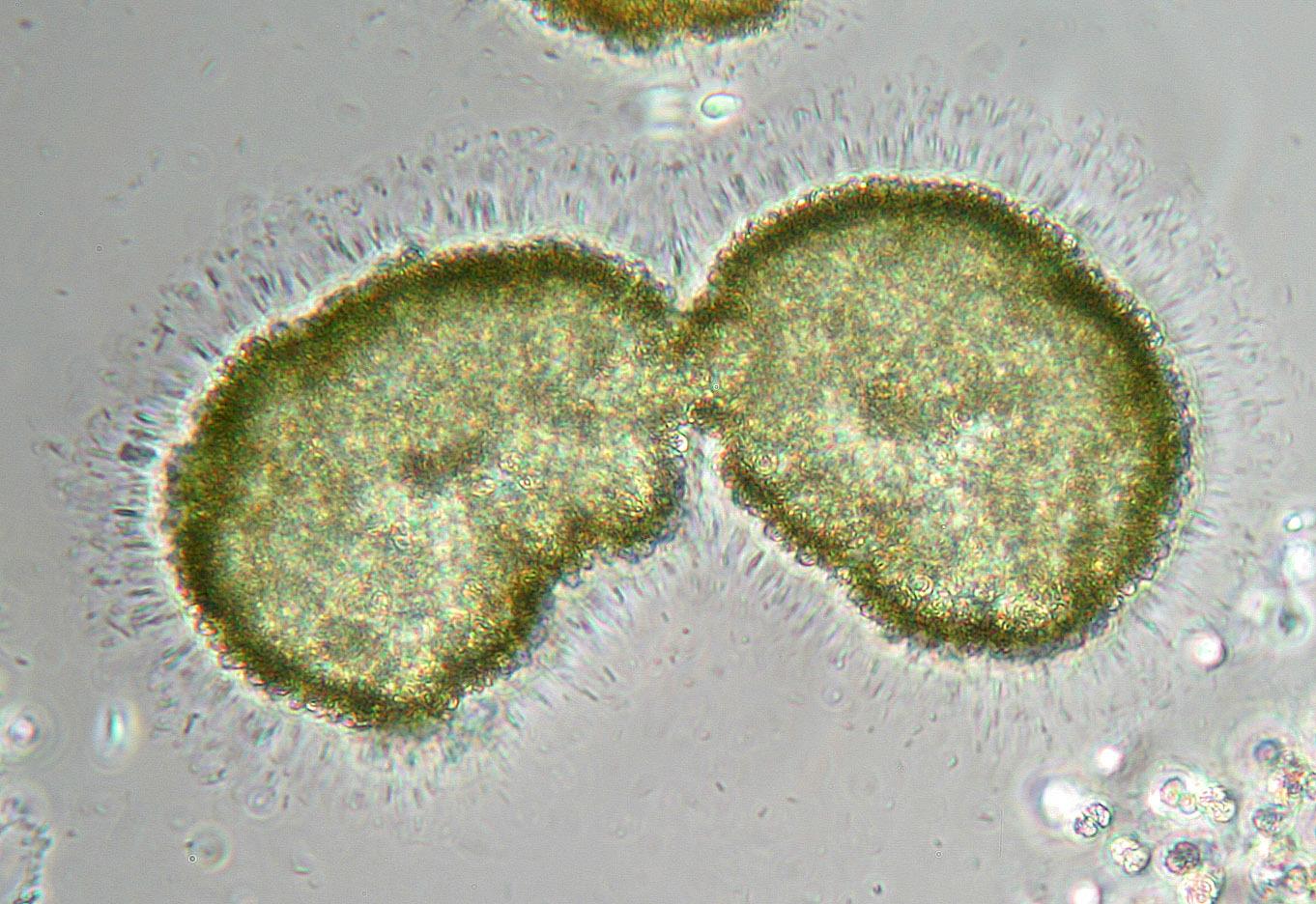 Image of <i>Coelosphaerium kuetzingianum</i> Naegeli 1849