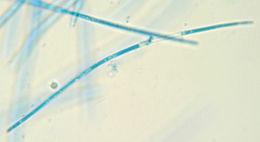Image of <i>Septoria scabiosicola</i> Desm. 1853