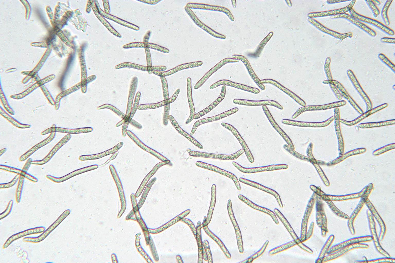 Image of <i>Lasiosphaeris hirsuta</i> (Fr.) A. N. Mill. & Huhndorf 2004