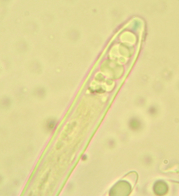 Image of <i>Hymenoscyphus scutula</i> (Pers.) W. Phillips 1887