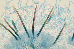 Image of Amerosporium