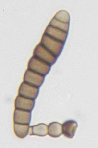 Image of <i>Torula herbarum</i> (Pers.) Link 1809