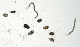 Image of <i>Sphaerularia bombi</i> Dofour 1837