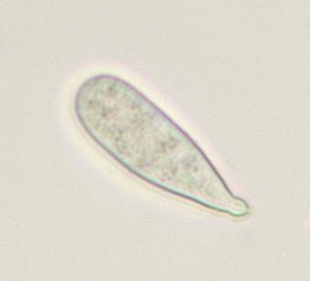 Image of Chytridium