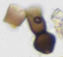 Image of <i>Deightoniella arundinacea</i> (Corda) S. Hughes 1952