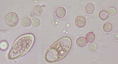 Image of <i>Tuberculina sbrozzii</i> Cavara & Sacc. 1899
