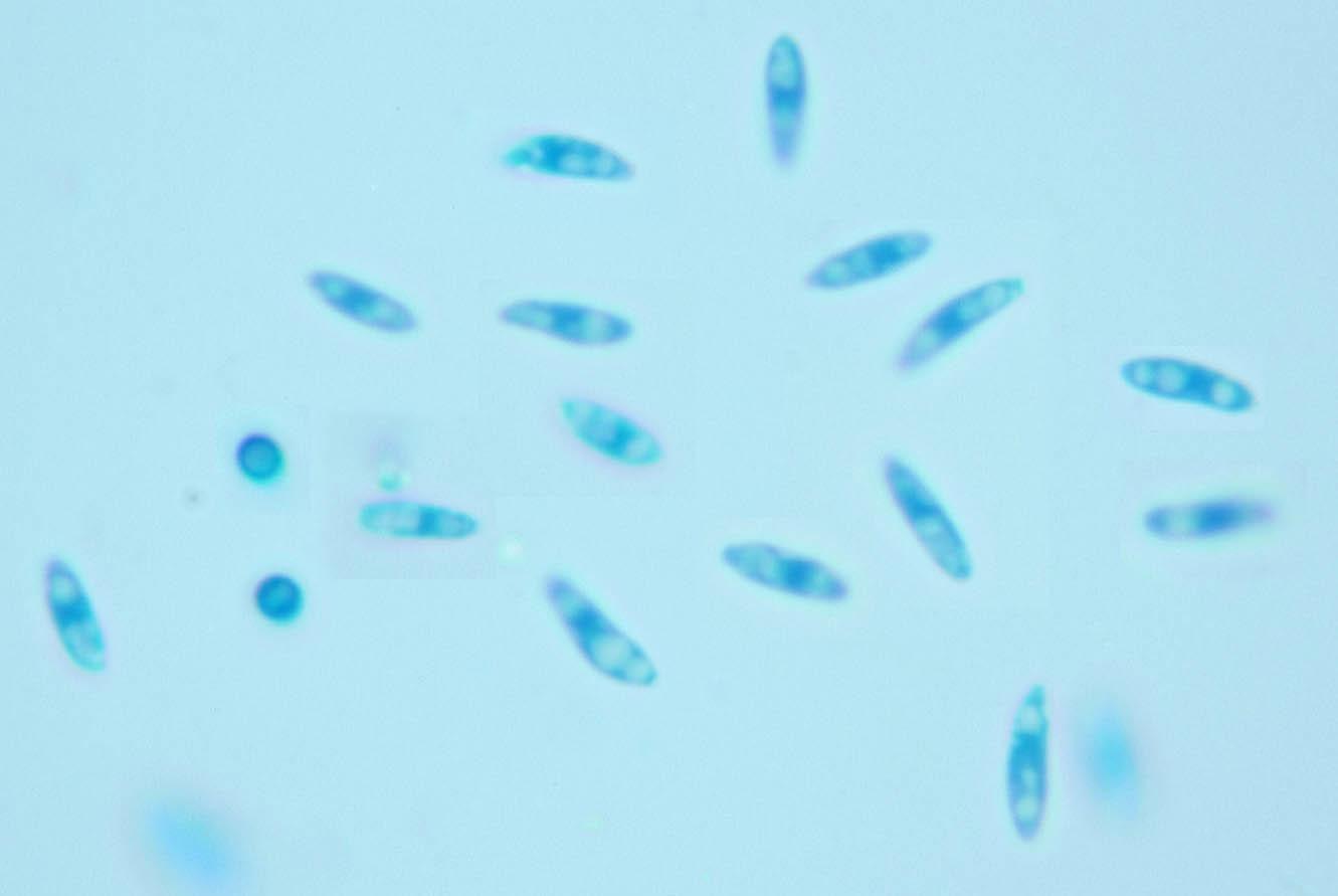 Image of <i>Phyllosticta fraxinicola</i>