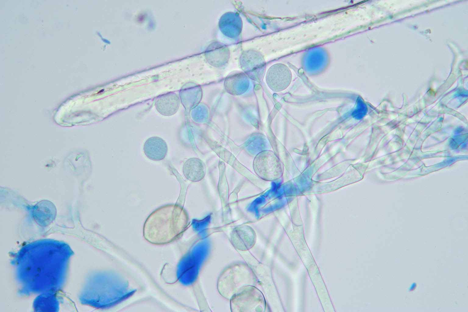Image of <i>Peronospora trifoliorum</i>