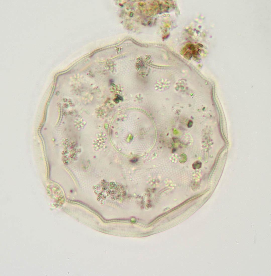 Image of <i>Arcella gibbosa</i>