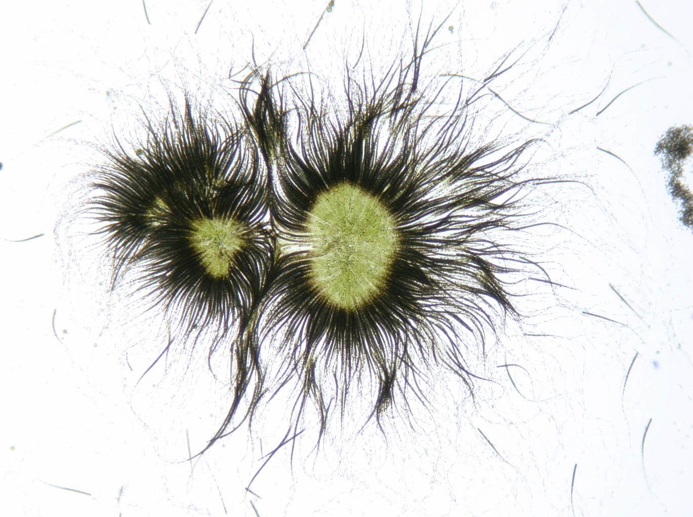 Image of <i>Gloeotrichia echinulata</i>