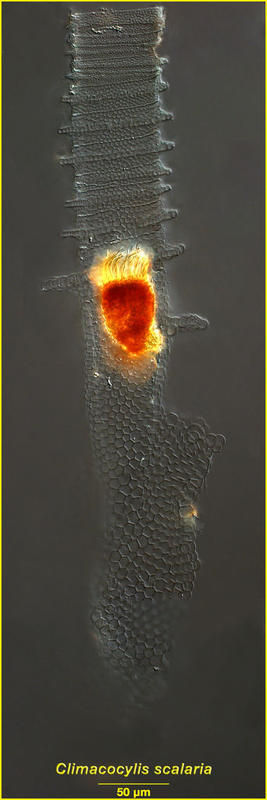 Image of <i>Climacocylis scalaria</i>