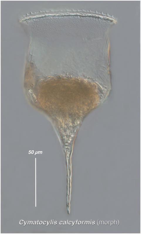 Image of <i>Cymatocylis calyciformis</i>