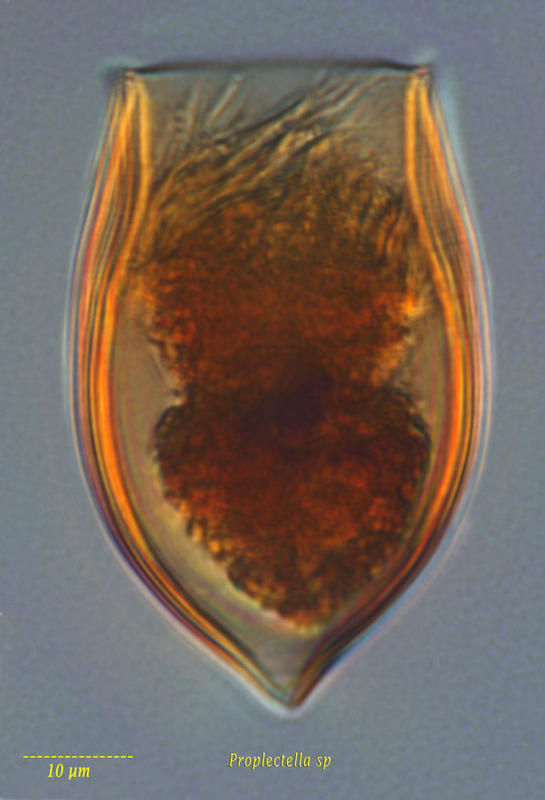 Image of <i>Proplectella subacuta</i> Kofoid & Campbell 1929