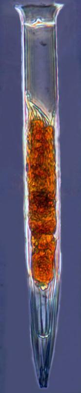 Image of <i>Salpingella curta</i> Kofoid & Campbell 1929