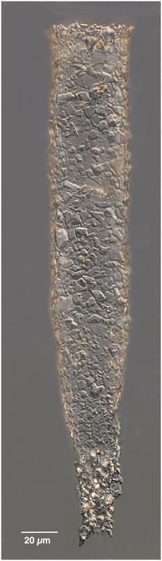 Image of <i>Tintinnopsis radix</i>