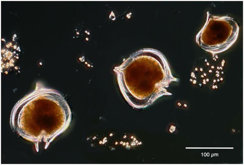 Image of <i>Protoperidinium antarcticum</i> (Schimper ex Karsten 1905) Balech 1974