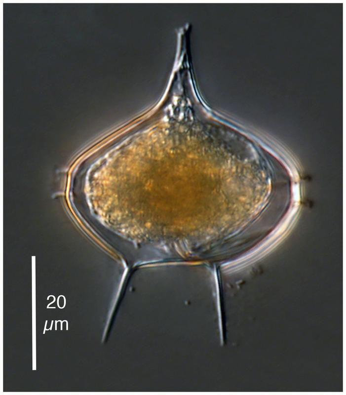 Image of <i>Protoperidinium elegantissimum</i> (Balech 1958) Balech 1974