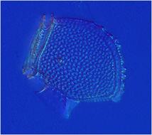Image of <i>Dinophysis norvegica</i>