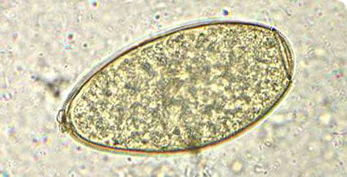 Image of <i>Fasciola hepatica</i> Linnaeus 1758