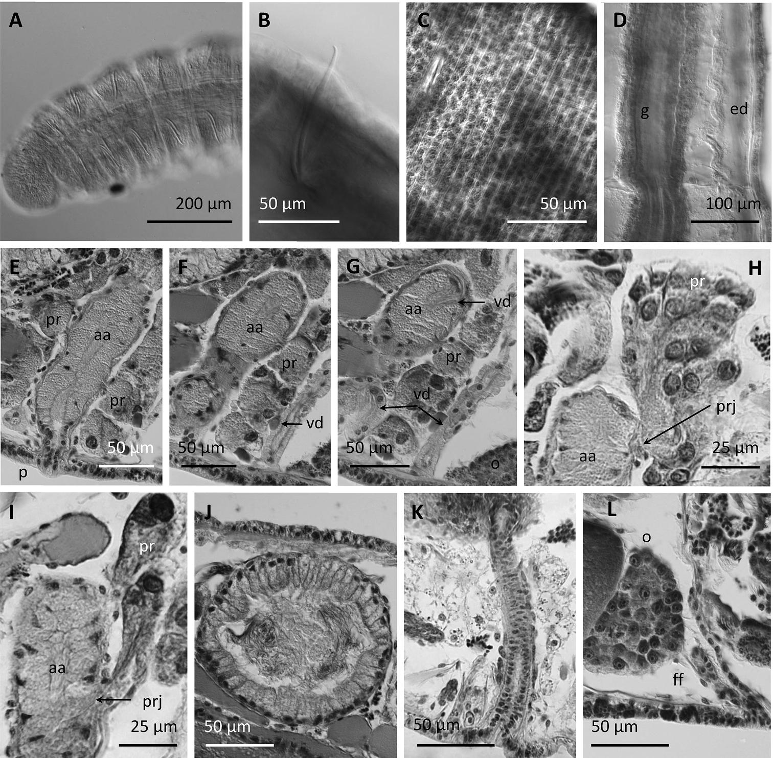 Image of <i>Stylodrilus coreyi</i> Rodriguez, Fend & Lenat 2014