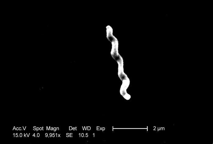 Image of <i>Campylobacter jejuni</i>