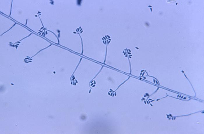 Image of Sporothrix
