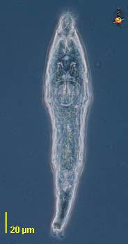 Image of Bdelloidea