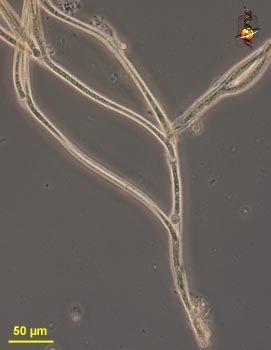 Image of Tolypothrichaceae