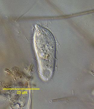 Image of Enchelyidae