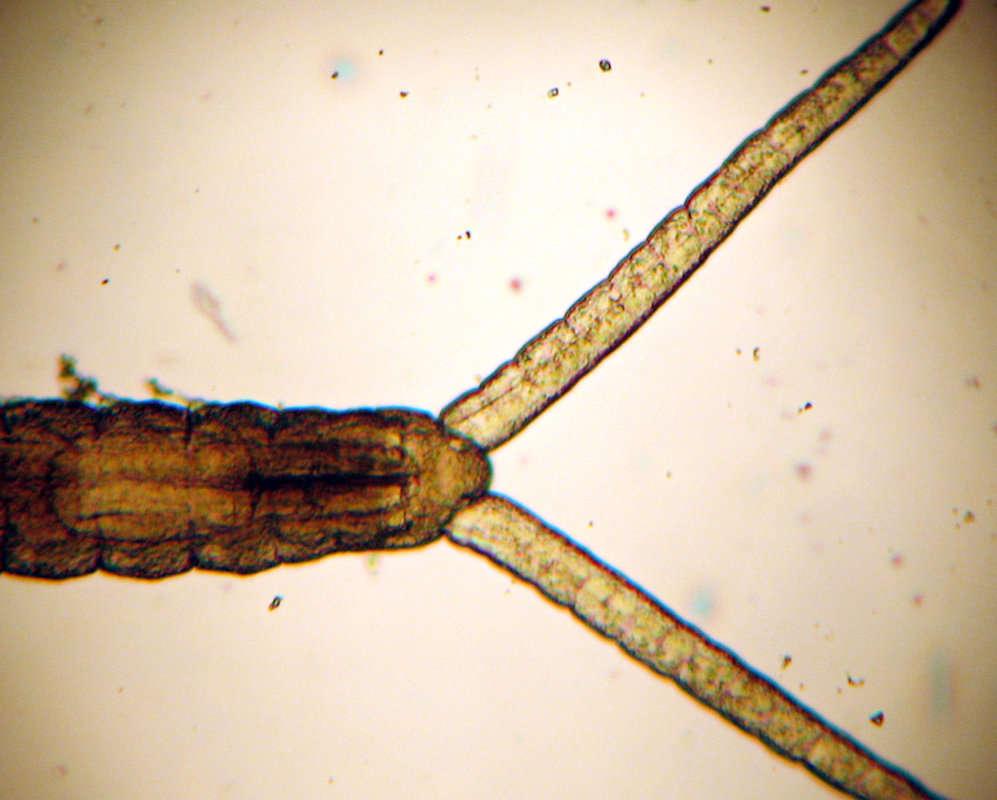 Image of Protodriliformia